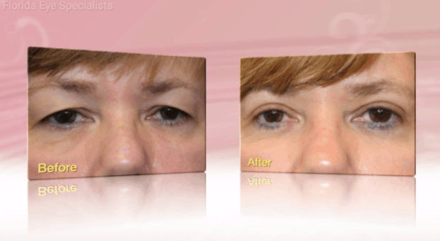 What You Need To Know About Blepharoplasty   Florida Eye Specialists