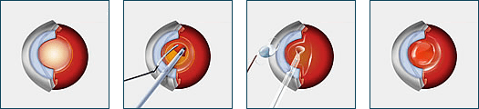Cataract Surgery New