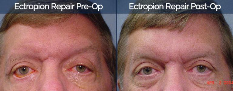 Ectropion Repair Before & After 2