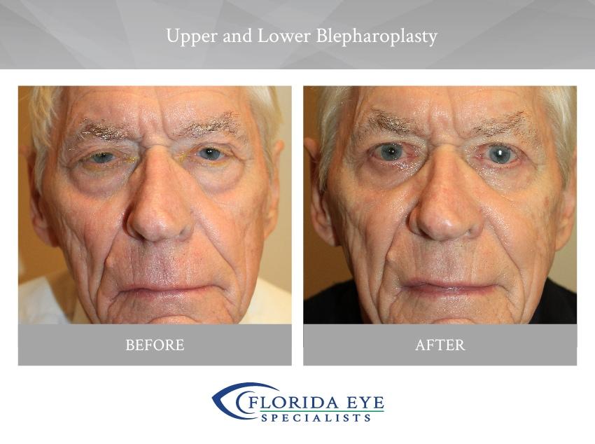 Older Man Upper and Lower Blepharoplasty