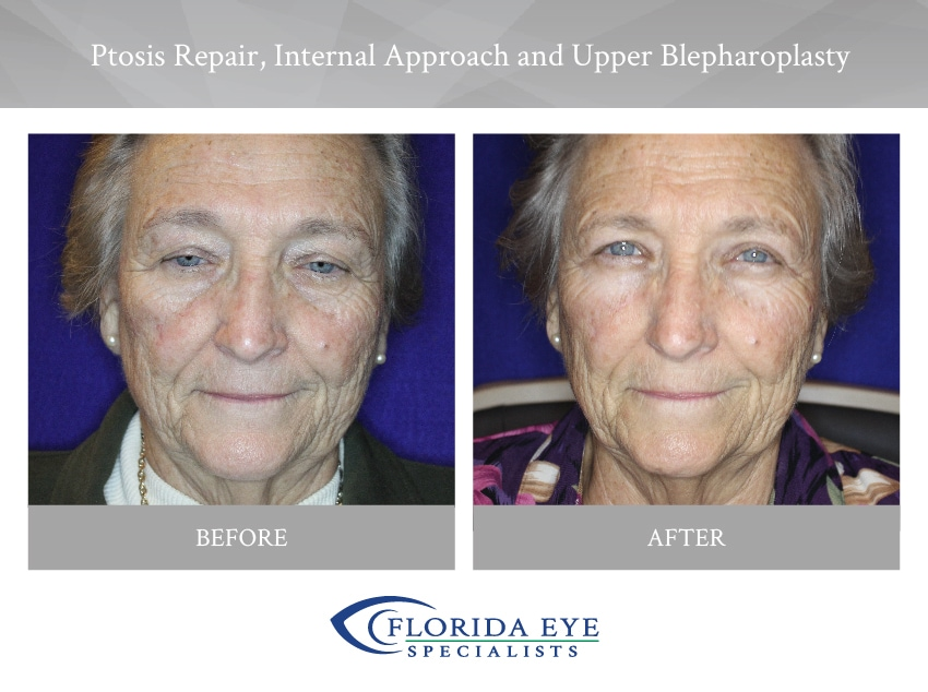 Ptosis Repair Internal Approach and Upper Blepharoplasty