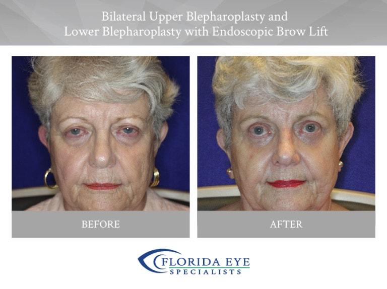 Bilateral Upper Blepharoplasty Lower Blepharoplasty with Endoscopic Brow Lift