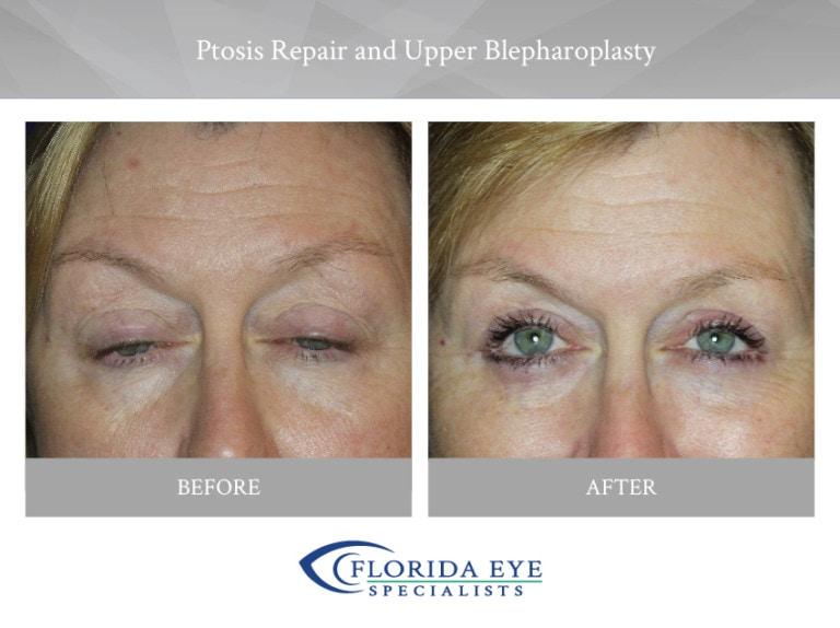 Ptosis Repair Upper Blepharoplasty Florida Eye Specialists