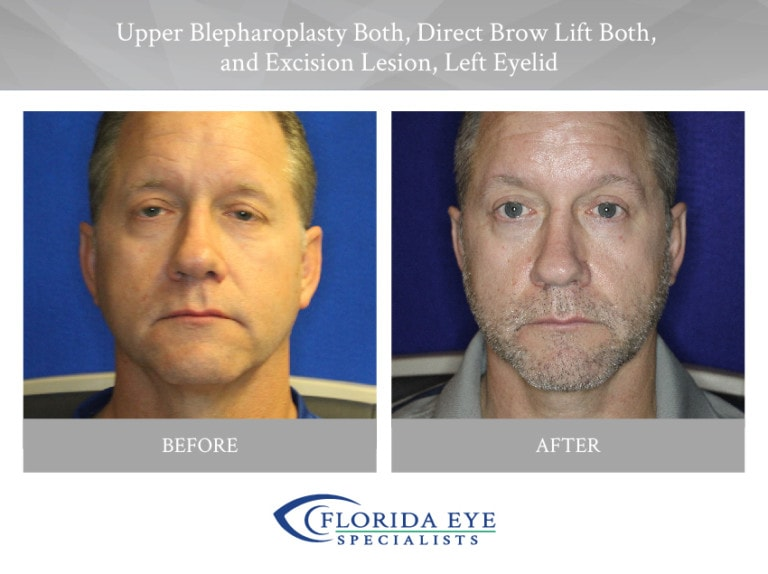 Upper Blepharoplasty Direct Brow Lift Excision Lesion