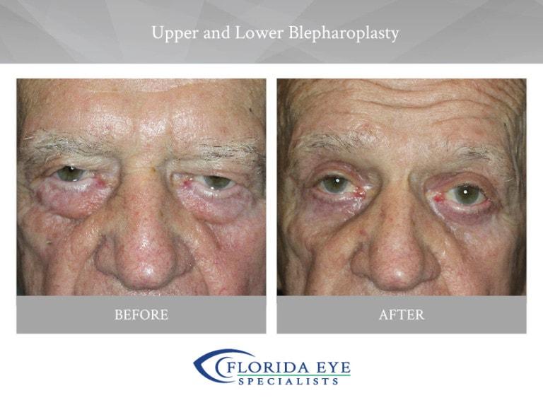 Upper and Lower Blepharoplasty