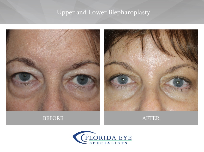 Older Woman with Upper and Lower Blepharoplasty