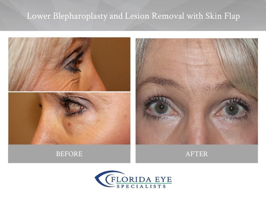 Lower Blepharoplasty Lesion Removal with Skin Flap