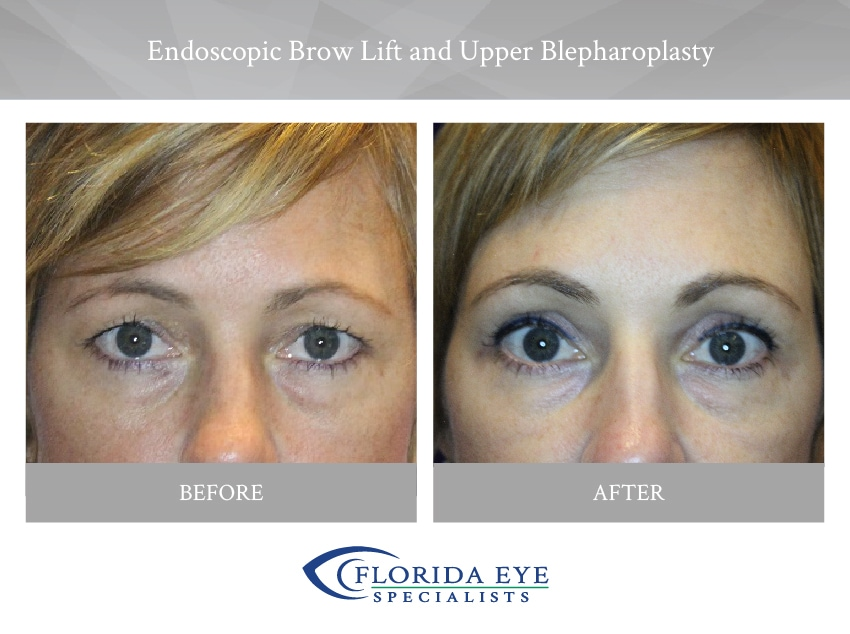 Endoscopic Brow Lift and Upper Blepharoplasty