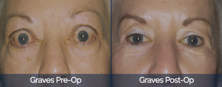 Graves' Disease Before & After 1