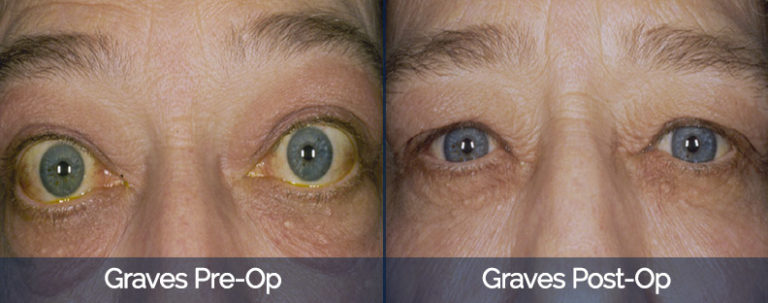 Graves' Disease Before & After 2
