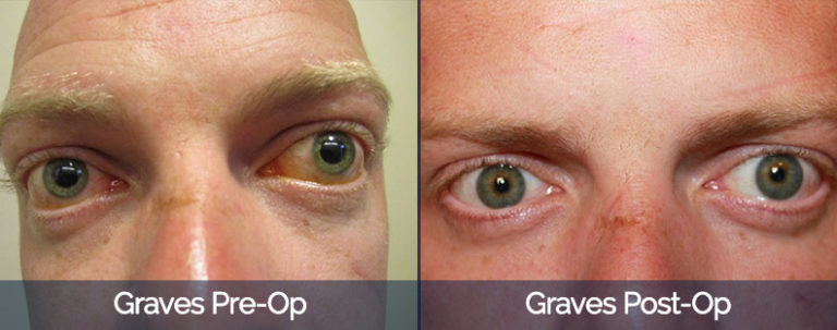 Graves' Disease Before & After 3