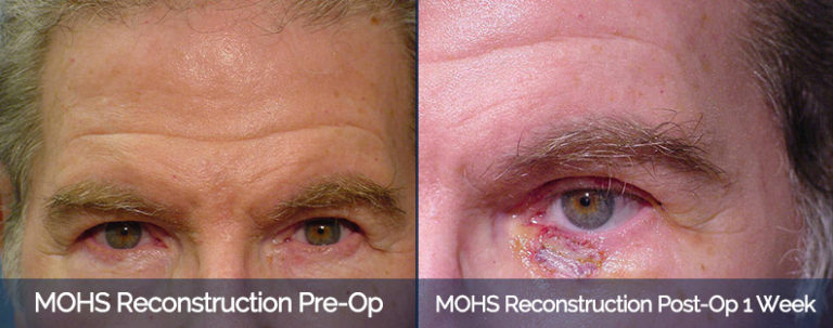 MOHS Reconstruction Before & After 1