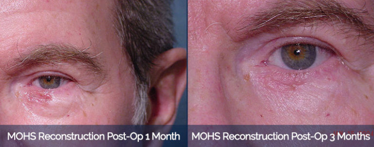MOHS Reconstruction Before & After 2