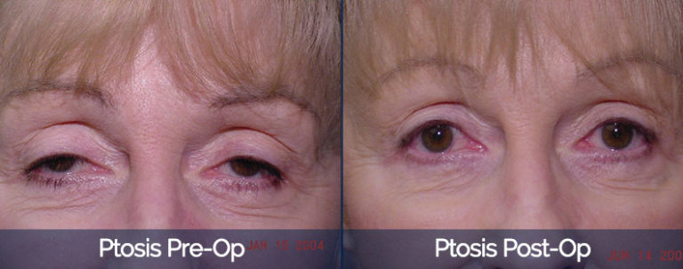Ptosis Before & After 1