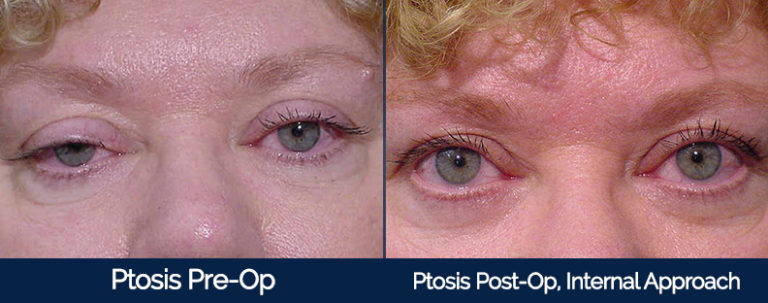 Ptosis Before & After 2